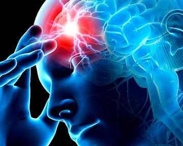 Может ли лечение ревматоидного артрита снизить риск инсульта и инфаркта?