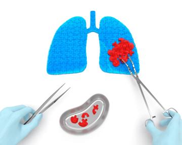 Резистентный туберкулез: коррекция схемы BPaL: уменьшение количества побочных эффектов без снижения эффективности?